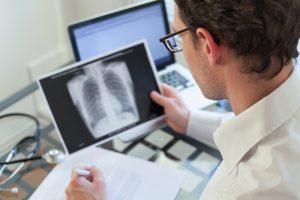 Die Diagnose COPD trifft die Patienten oft eher unorganisiert.