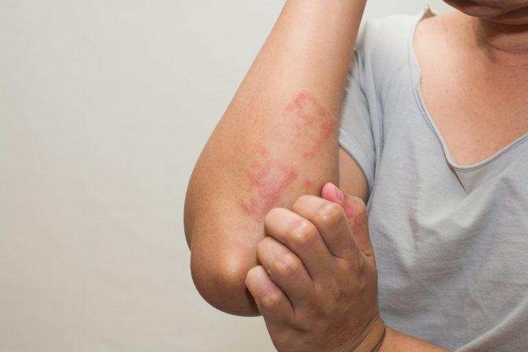 Neurodermitis ist ein Hautausschlag, der nicht durch äußere Einflüsse, sondern durch innere Auslöser verursacht wird.